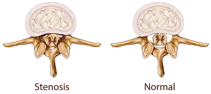 Spinal canal stenosis